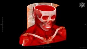 ct_skull